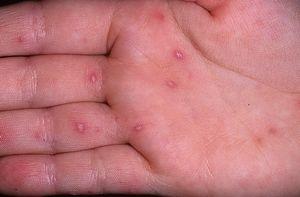 аллергия руки в пузырьках лечение