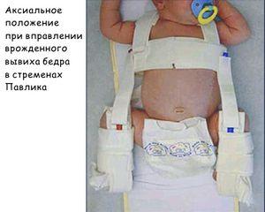 Подвывих тазобедренного сустава у новорожденных сколько стоит платное обследование артрос тазобедренного сустава