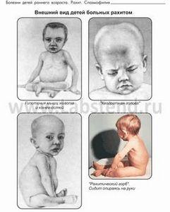 детей фото симптомы рахит у
