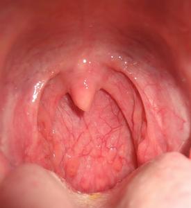 Лечения пневмонии вызванной клебсиеллой