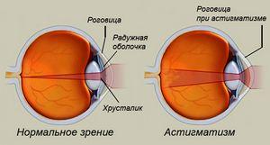 Исследовательский проект как сохранить и улучшить зрение
