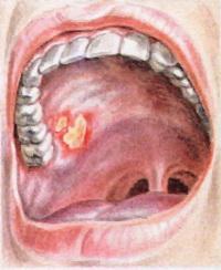 у ребенка во рту болячки фото
