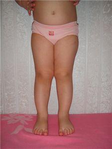 Ножки иксом у ребенка