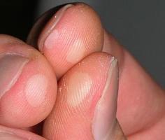 Вирус папилломы руки