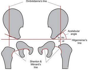 Узи тазобедренных суставов у детей минск суставы пальцы на ногах лечение
