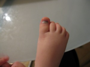 Прополис на спирту лечение ногтей от грибка
