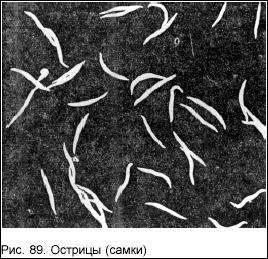крупные черви в организме человека