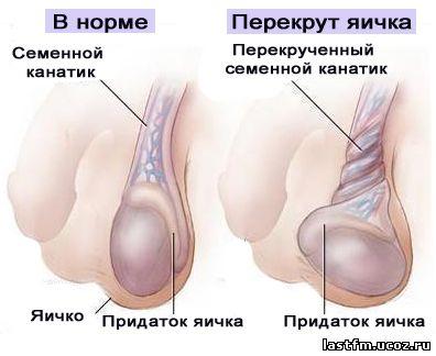 Геморрой лечение партизанская