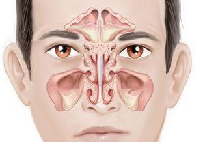 Лечение метастазов лимфоузлов при раке простаты